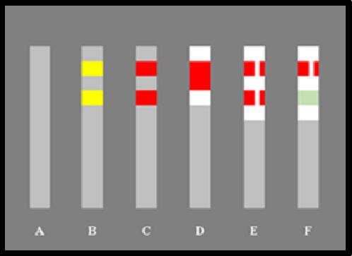 Bildbeschreibung: Das Bild 4 zeigt fünf nebeneinander stehende graue Sperrpfosten vor einem grauen Hintergrund. Der dem jeweiligen Sperrpfosten zugewiesene Buchstabe steht unter diesen. Ende der Bildbeschreibung.